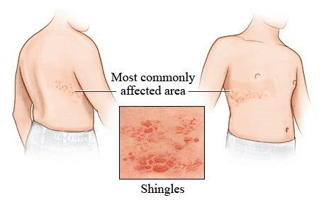 Shingles common areas