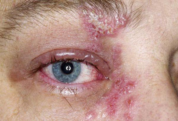 Shingles in the Eyes