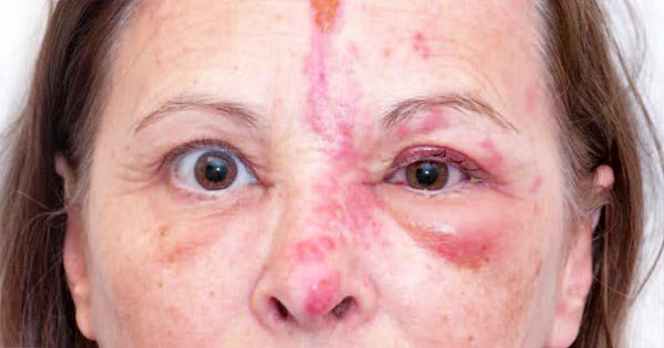 Treatment of Shingles in Eyes
