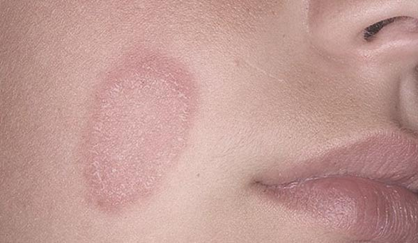 Treatment of Shingles on Face