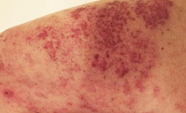 Shingles rash on leg
