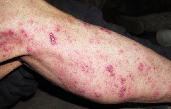 Pictures of Shingles Rash (part 2) | Shingles Expert