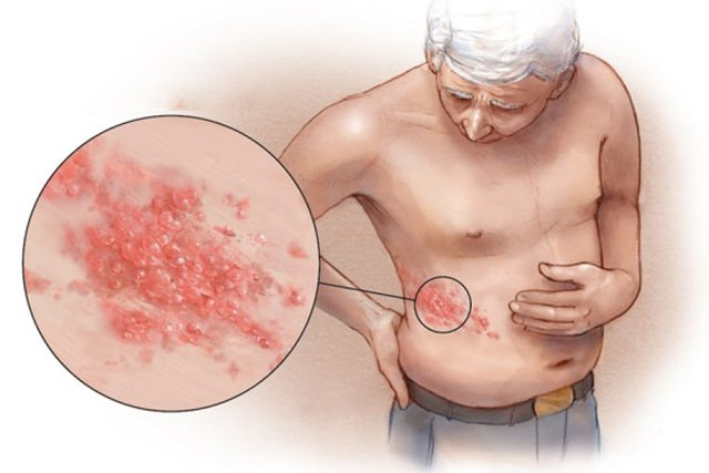 Diagnostics Shingles on stomach