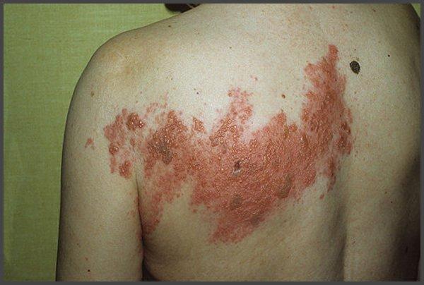 Picture of Shingles rash on body of men