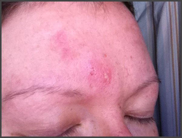 mild shingles on face pictures