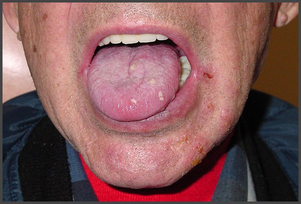 pictures of shingles in your mouth