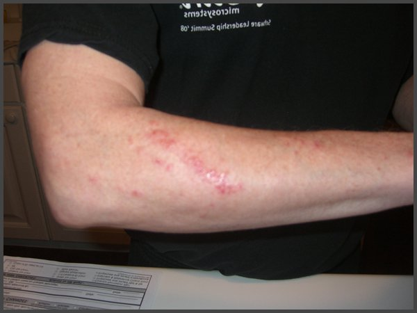 pictures of shingles on your arm