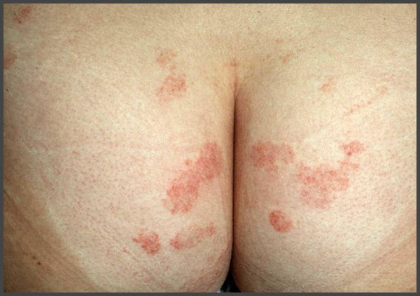 pictures of shingles on your buttocks