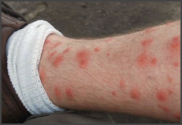 pictures of shingles on your leg