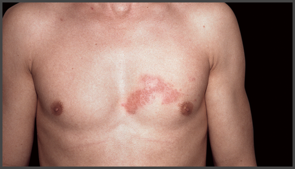 pictures of shingles rash on chest