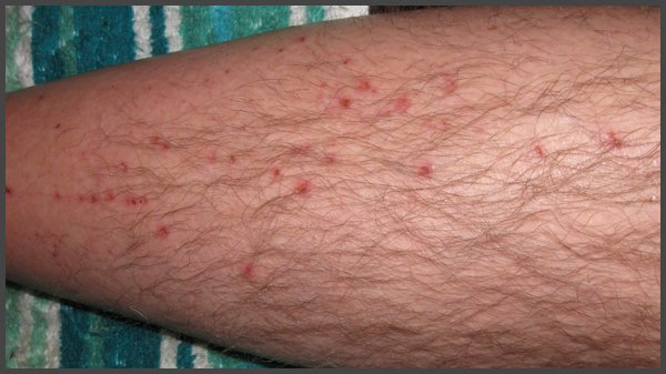 pictures of shingles rash on legs
