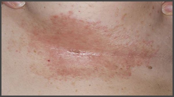 pictures of shingles under breast