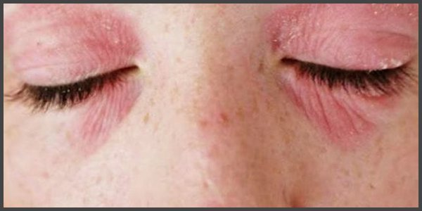 shingles near the eye pictures