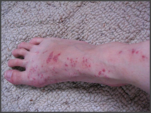 shingles on feet pictures