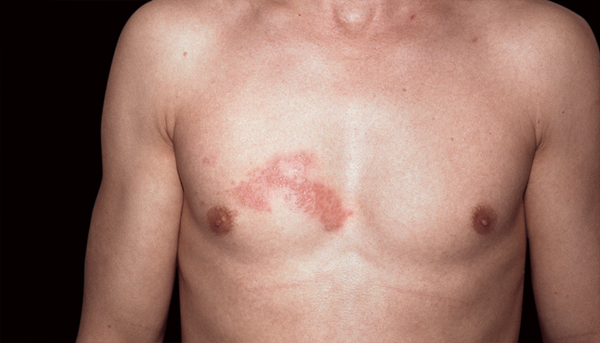 shingles rash man