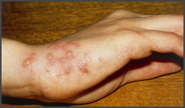 shingles rash on arm pictures